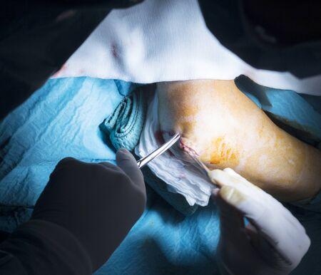 ortopedia: Codo Hospital de Traumatología y ortopedia brazo cirugía costura operación foto.