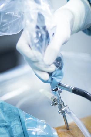 orthopaedics: Ortopedia cirug�a de rodilla el hospital de Traumatolog�a operaci�n quir�rgica foto.