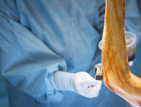 orthopaedics: Hospital de Ortopedia de emergencia cirug�a en el codo del brazo foto operaci�n sala de operaciones. Foto de archivo