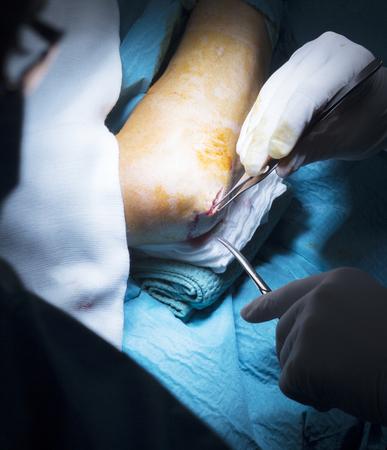 orthopedics: Hospital elbow and arm orthopedics surgery Traumatology operation stitching photo.
