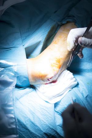 orthopedics: Hospital elbow and arm orthopedics surgery Traumatology operation photo. Stock Photo