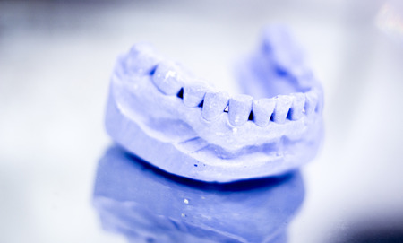 prosthetics: Dental prosthetics clay tooth mold in dentists photo. Stock Photo