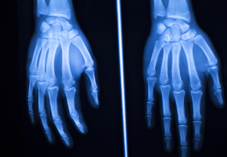 traumatology: Hand, fingers and thumb hospital x-ray scan test results for joint pain and injury in orthopedic medicine and traumatology clinic.