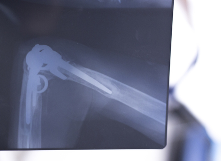 traumatology: Othopedics and Traumatology surgical implant arm and elbow xray test scan results showing titanium metal plate and screws. Stock Photo