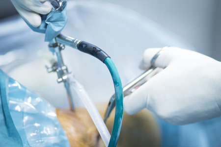 ortopedia: Ortopedia cirugía de rodilla el hospital de Traumatología operación quirúrgica foto.