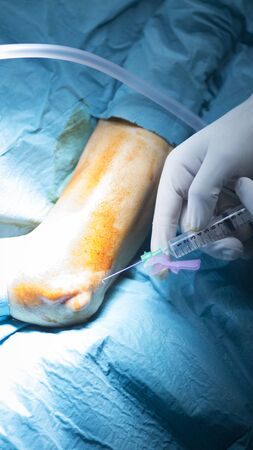 orthopaedics: Codo Hospital de Traumatolog�a y ortopedia brazo cirug�a operaci�n foto. Foto de archivo