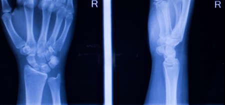 traumatology: Hand, fingers, thumb and wrist injury orthopedic Traumatology medical x-ray test scan image.