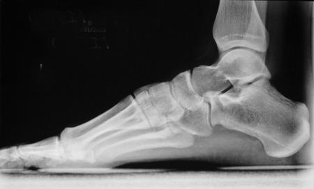 traumatology: Foot, heel and toes injury Traumatology medical load bearing x-ray Orthopedic test scan image.