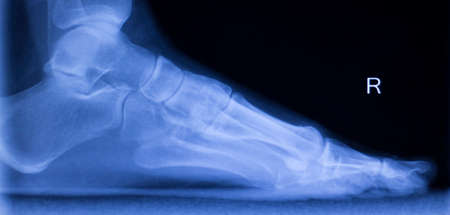 traumatology: Foot heel and ankle injury Traumatology medical x-ray Orthopedic test scan image.