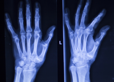 thumb x ray: Hand, fingers, thumb and wrist injury orthopedic Traumatology medical x-ray test scan image.