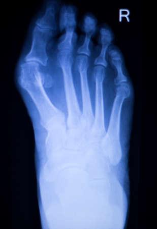 traumatology: Foot and toes injury Traumatology medical x-ray Orthopedic test scan image. Stock Photo