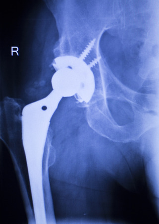 hip replacement: Hip replacement xray orthopedic medical x-ray Traumatology test scan image of old age senior adult.