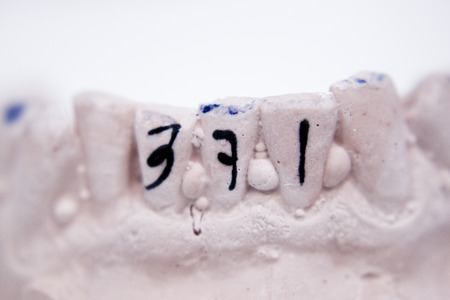 prosthetics: Dental prosthetics clay tooth mold in dentists laboratory photo. Stock Photo