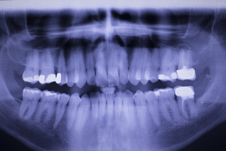 gingivitis: Dental teeth fillings, gum disease gingivitis dentists medical tooth x-ray test scan image.