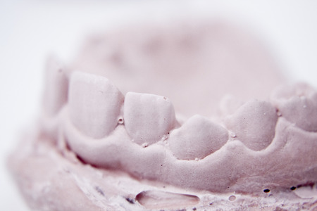 plaster mould: Dental prosthetics clay tooth mold in dentists laboratory photo. Stock Photo