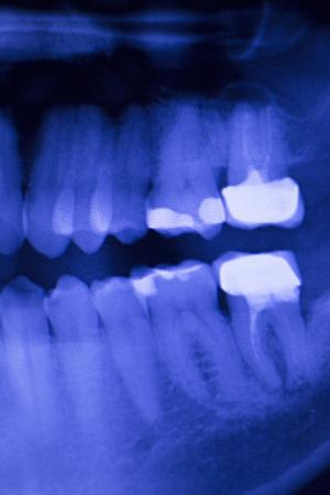 otturazioni dei denti dentali, malattia di gomma immagine dei denti Radiografia scansione di prova gengivite dentisti.