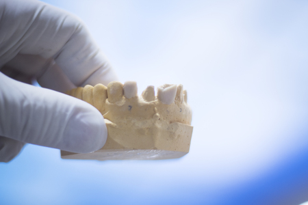 prosthetic: Dentists dental teeth prosthetic mould in clinic.
