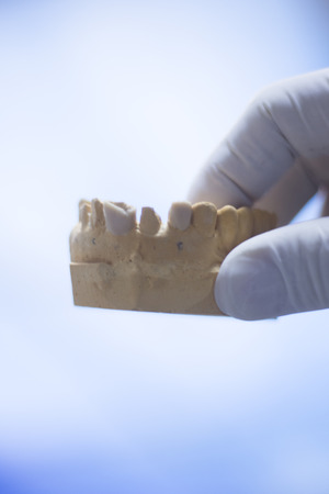 mould: Dentists dental teeth prosthetic mould in clinic.
