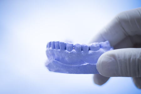 implantology: Dentists dental teeth prosthetic mould in clinic.