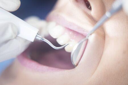 instrumentation: Dentist examining patient mouth in dental exam with dentists instrumentation in clinic. Stock Photo