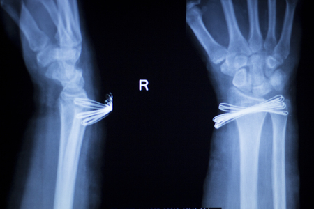 forearm: Wrist, hand, forearm and arm injury medical x-ray test scan result for adult showing orthopedic Traumatology titanium metal plate implant image.