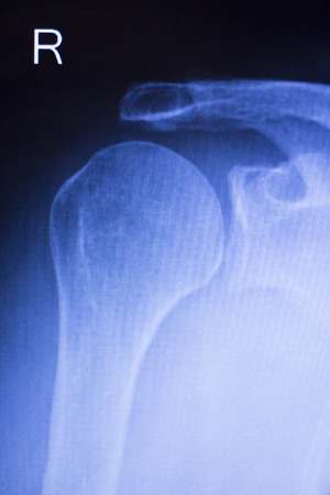 arthritic: Shoulder joint injury xray traumatology and orthopedics test medical scan used to diagnose sports injuries in patient.