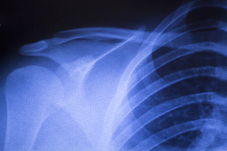 orthopedics: Shoulder joint injury xray traumatology and orthopedics test medical scan used to diagnose sports injuries in patient.