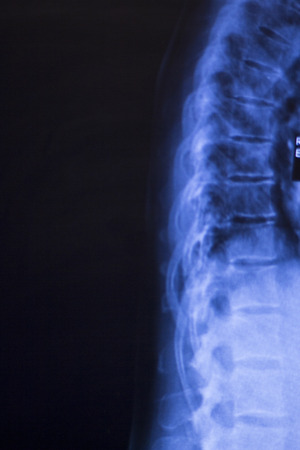 vertebra: Neck and spine xray traumatology and orthopedics spinal vertebra test medical scan used to diagnose sports injuries and arthritis condition.