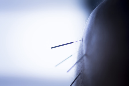 Dry needling acupunture needles used by acupunturist physiotherapist on patient in pain and injury treatment closeup macro hoto.