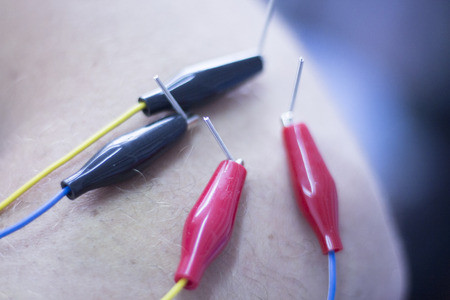 Dry needling electroacupunture needles used by acupunturist physiotherapist on patient in pain and injury acupunture with electrical pulse treatment. Stockfoto