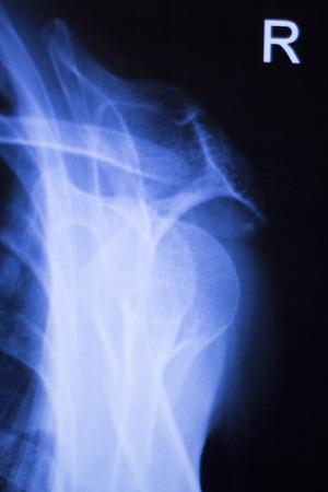 orthopaedics: Lesi�n de la articulaci�n del hombro traumatolog�a y ortopedia radiograf�a prueba de exploraci�n m�dica utilizada para diagnosticar las lesiones deportivas en el paciente.