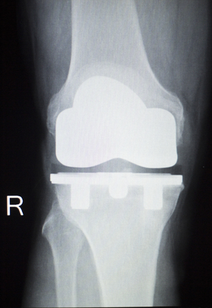 titanium: Knee joint replacement orthopedic titanium metal Traaumatology ball and socket implant x-ray image of old age patient. Stock Photo