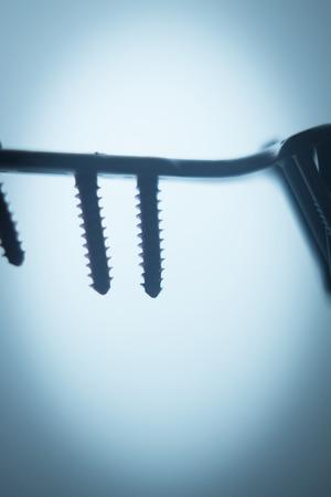ortopedia: Ortopedia y Traumatología placa de la cirugía y tornillos de titanio quirúrgico de implante de metal cerca de aislados. Foto de archivo