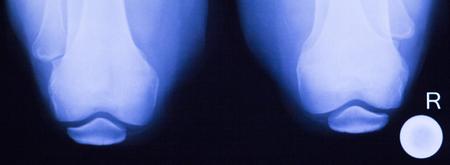 knee cap: Knees joints meniscus knee cap x-ray image of old age patient.