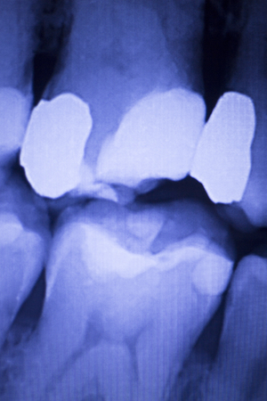with fillings: Dentists dental teeth x-ray showing tooth fillings.