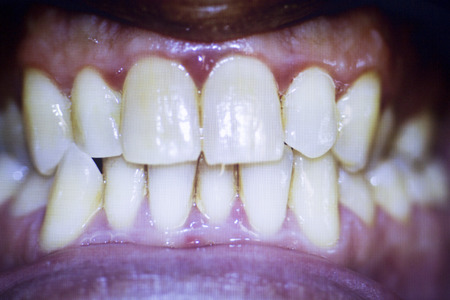 front teeth: Dentists dental tooth photograph showing tooth non aligned front teeth and plaque.
