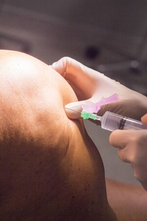 anaesthetic: Anaesthetist anaestthetic injection for surgical operation knee arthroscopy micro surgery in hospital operating theater emergency room. Stock Photo