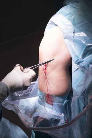 Surgical operation knee arthroscopy micro surgery in hospital operating theater emergency room for traumatology and orthopedics. Stock Photo
