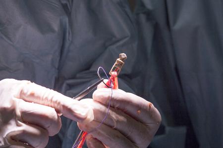 ortopedia: tendón de la rodilla y la cirugía de reparación de ligamentos en el hospital sala de operaciones sala de emergencias para traumatología y ortopedia. Foto de archivo