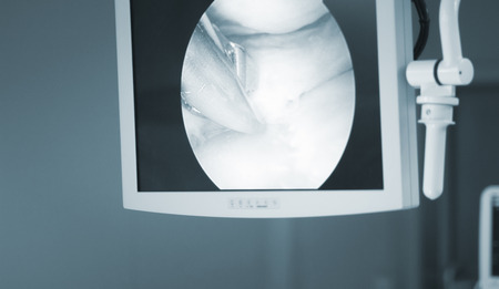 Arthroscopy surgery screen showing arthroscope camera picture in knee meniscus surgical operation to repair injury Stock Photo - 67400274