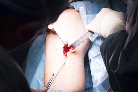 kneecap: Surgical operation knee arthroscopy micro surgery on knee, tendon, ligament and meniscus  in hospital operating theater emergency room. Stock Photo