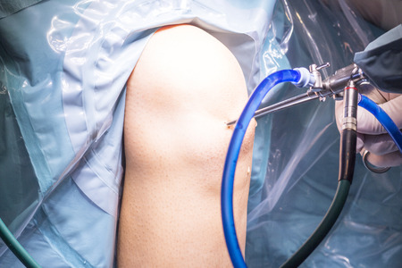 surgical operation: Surgical operation for knee arthroscopy micro surgery in hospital operating theater emergency room of traumatology and orthopedics.