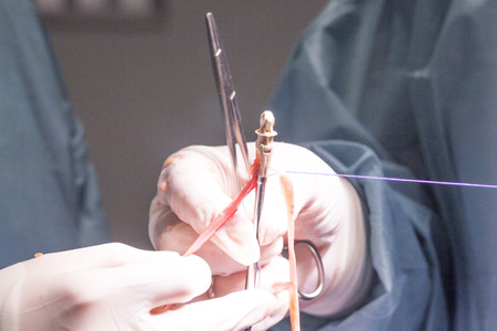 tendon: Knee tendon and ligament repair surgery in hospital operating theater emergency room for traumatology and orthopedics.