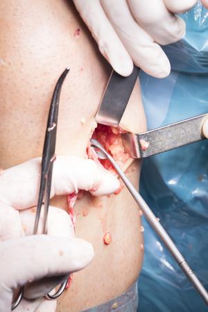 tendon: Surgical operation knee arthroscopy micro surgery on knee, tendon, ligament and meniscus  in hospital operating theater emergency room. Stock Photo