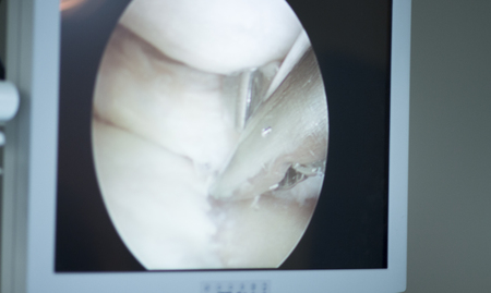 surgical operation: Arthroscopy surgery screen showing arthroscope camera picture in knee meniscus surgical operation to repair injury