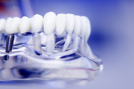 Dentists tooth plastic model with screw implant for teaching, learning and patients in dental office showing teeth and gums.