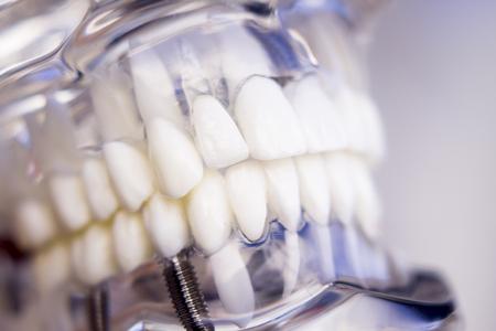Tandartsen tand plastic model met schroef implantaat voor het onderwijs, het leren en de patiënten in tandartspraktijk die tanden en tandvlees.