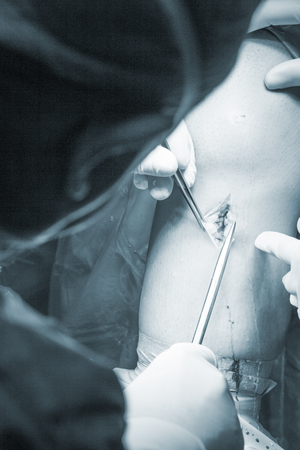 surgical operation: Surgical operation knee arthroscopy micro surgery on knee, tendon, ligament and meniscus  in hospital operating theater emergency room. Stock Photo