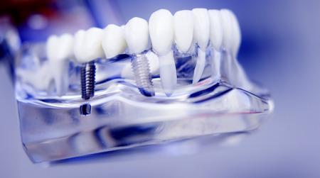 치과 의사 치아와 잇몸 게재 치과 사무실에서 환자 교육, 학습 및 스크류 임 플 란 트 플라스틱 모델. 스톡 콘텐츠