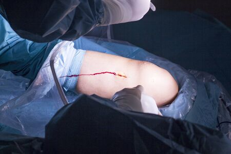 kneecap: Surgical operation for knee arthroscopy micro surgery in hospital operating theater emergency room of traumatology and orthopedics.